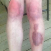 Seths psoriasis efter CBD-oljan - jämförande foton